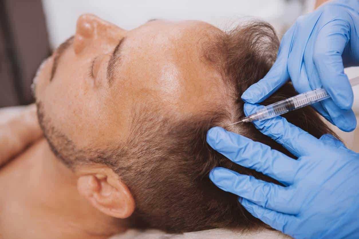 traitement chute cheveux