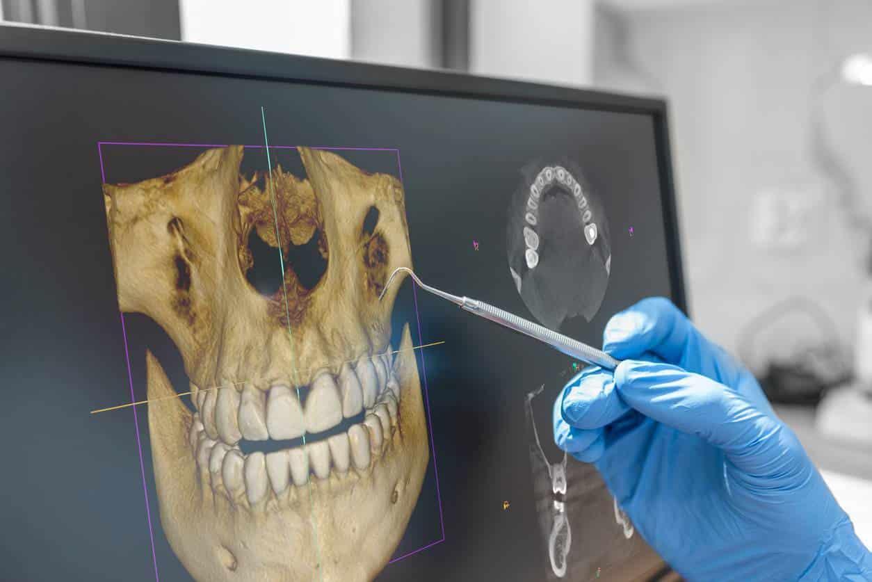 appareil équipement dentiste implantologie