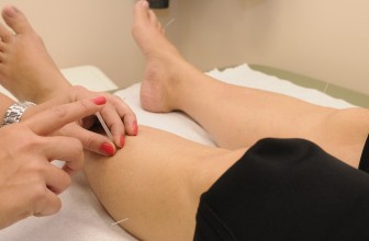 Tout ce que vous devez savoir sur l'acupuncture